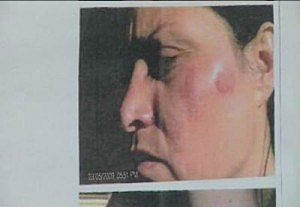 Pasco woman settles with police department in lawsuit